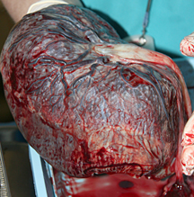 Placenta And Cord